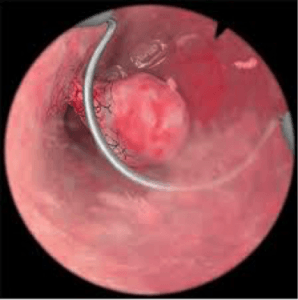 new safe approach of performing endometrial polypectomy